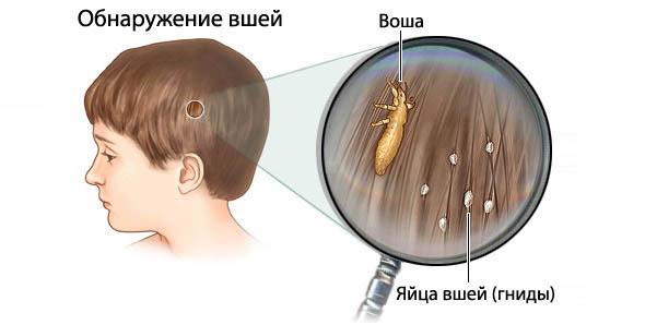 Как избавиться от вшей покраской волос