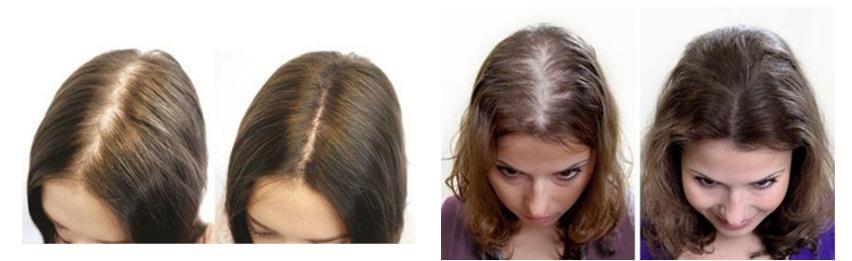 Фото до и после применения активатора роста