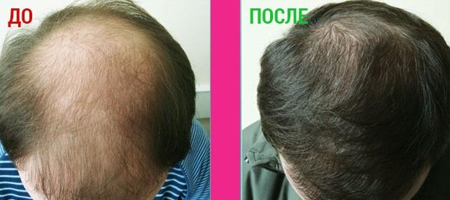 До и после применения раствора Platinus V Professional