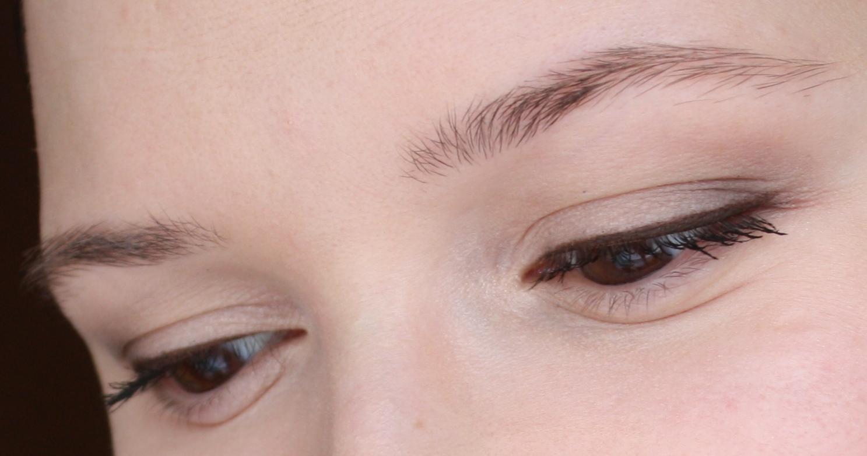 no eyebrows causes