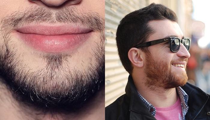 власоглава, как можно отрастить бороду фото растет