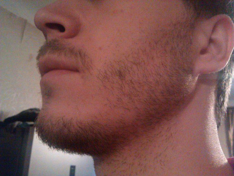 к какому врачу идти если не растет борода на щеках